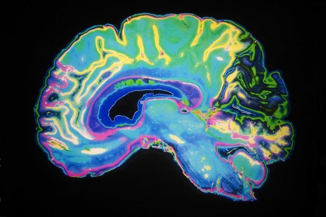 Metastudien er gjennomført ved Örebro Universitet i Sverige. (Ill.foto: Colourbox)